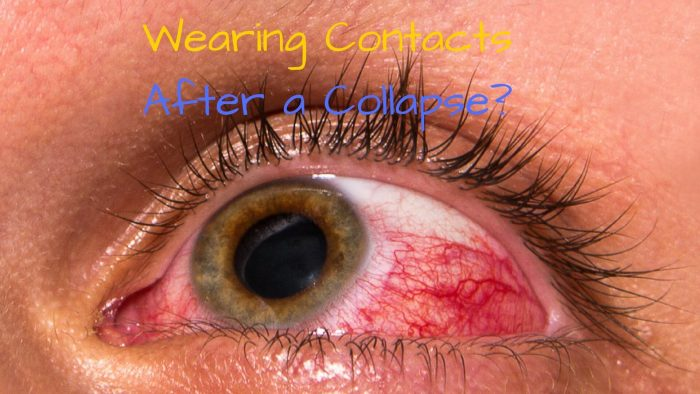 Wearing Contacts Following a Collapse