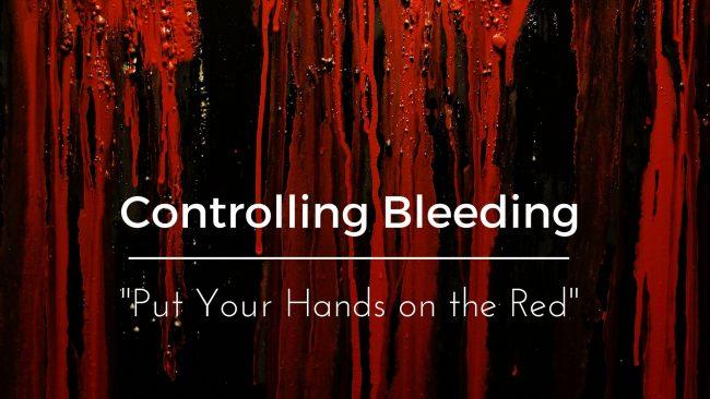 How to Stop Bleeding